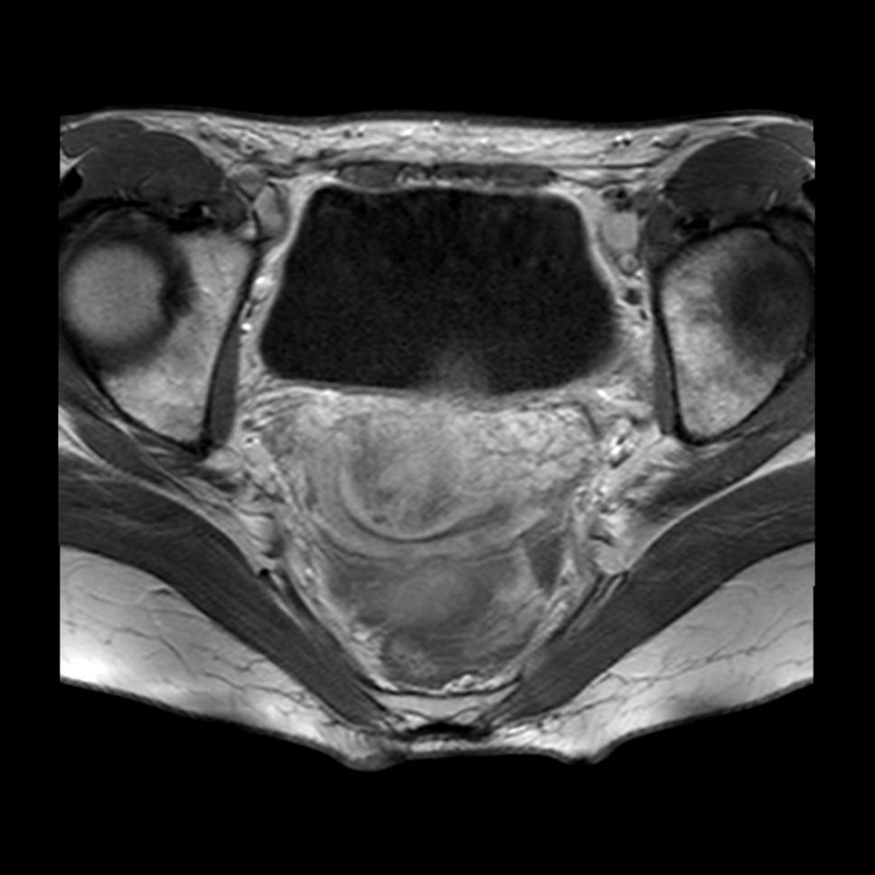 prolasso uterino immagini